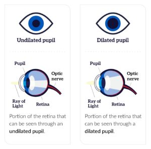 Difference between a dilated pupil and an undilated pupil