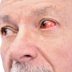 Causes of eye bloodshot