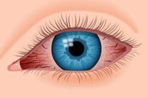 Image of eye bloodshot