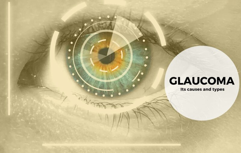 The causes and types of glaucoma