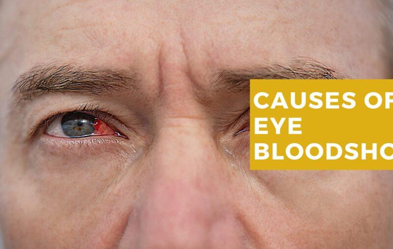 What casues eye bloodshot