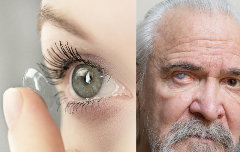 Contact lenses and cataracts